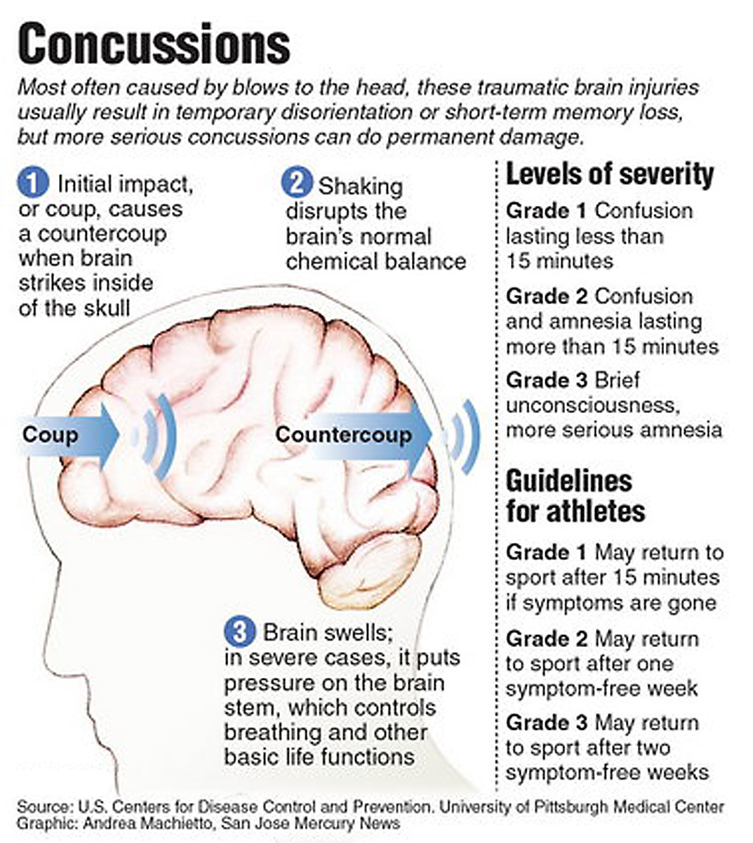 history of concussions Conclusions our study suggests that players with a history of previous  concussions are more likely to have future concussive injuries than those with no  history.