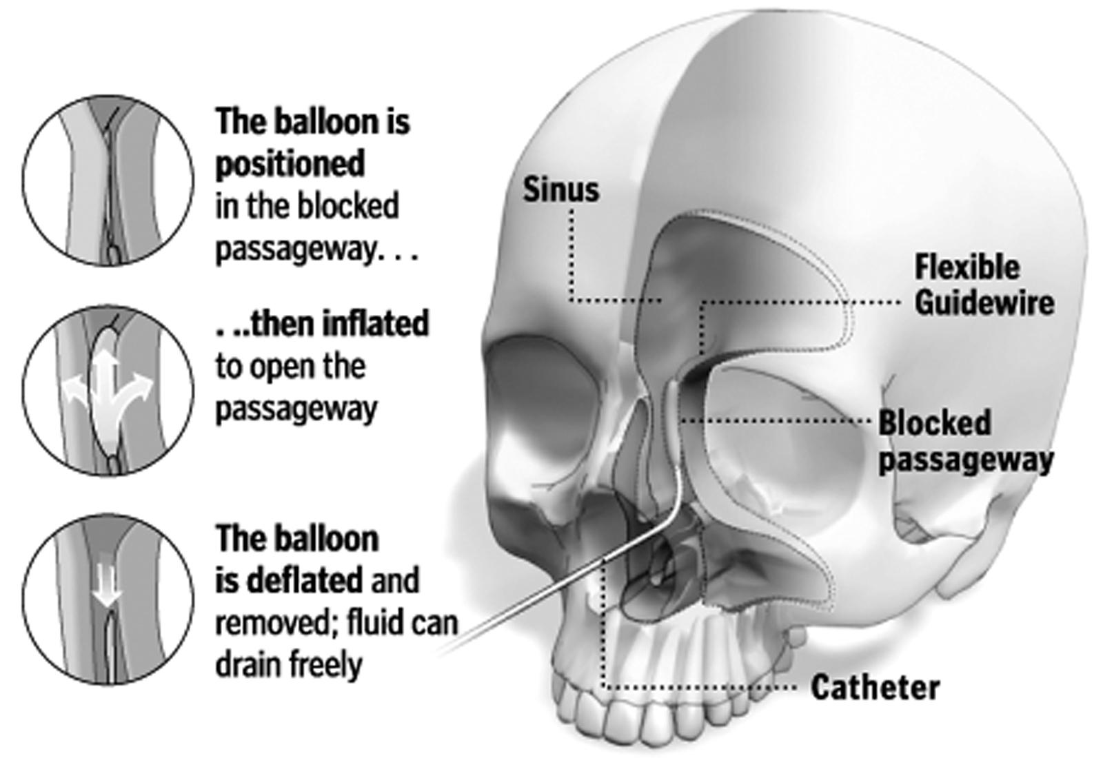 AA-Sinus Issues
